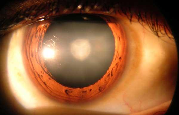 cataract-min